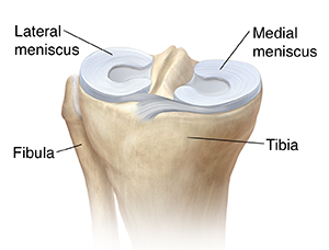 Three-quarter view of top of tibia showing lateral meniscus and medial meniscus.